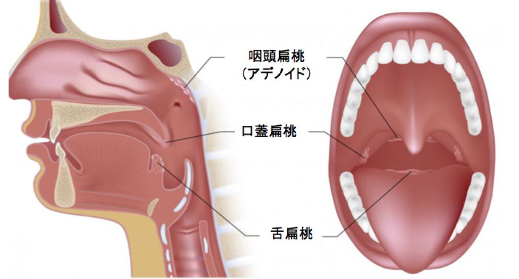 デメリット 切る 扁桃 腺