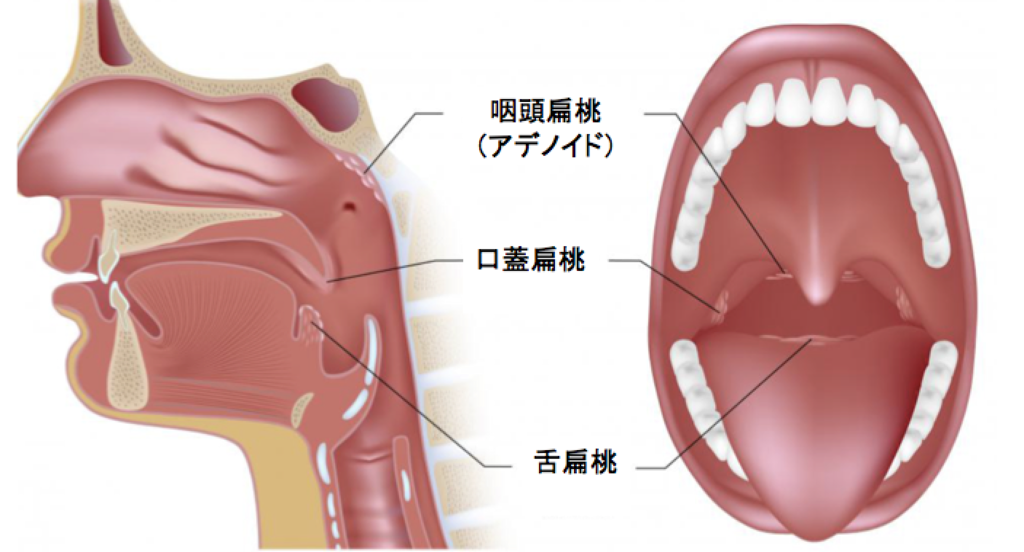 扁桃腺切除手術:そのリスクをご存じですか? \u2013 Be Healthy and